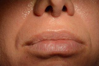 Ringiovanimento one-step dei tessuti periorali
