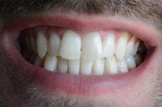 sbiancamento dentale dopo2