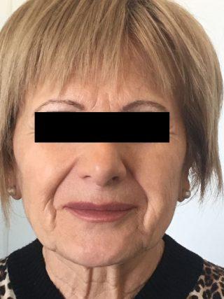 Ringiovanimento del volto con Plexr dopo
