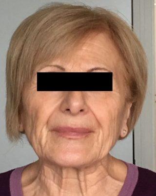 Ringiovanimento del volto con Plexr prima
